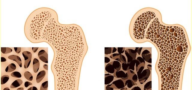 osteoporosis bone2