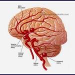 交通事故と脳内出血の因果関係